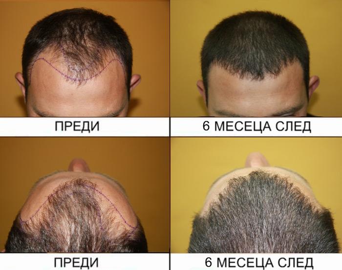 hair-transplantation-2