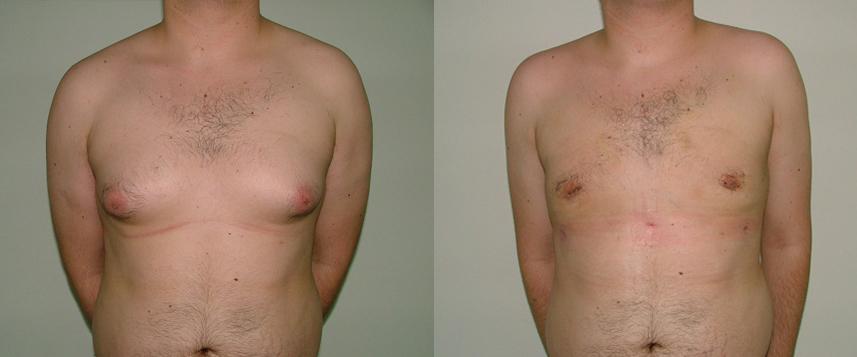 result_gynecomasty1