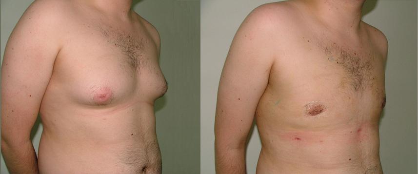 result_gynecomasty2