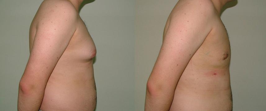 result_gynecomasty3