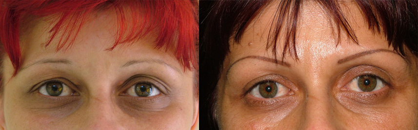blepharoplasty_results1