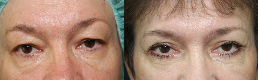 blepharoplasty_results2