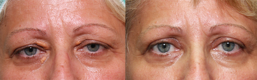 blepharoplasty_results3