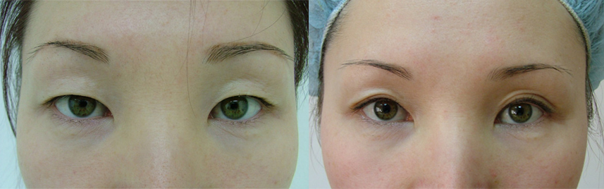 blepharoplasty_results4