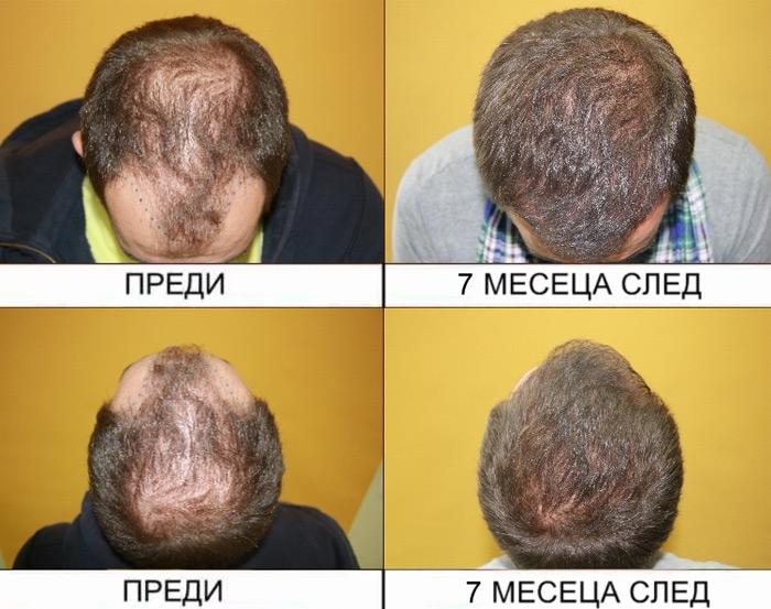 hair-transplantation-4
