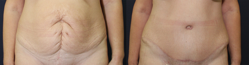 result_abdominoplasty1