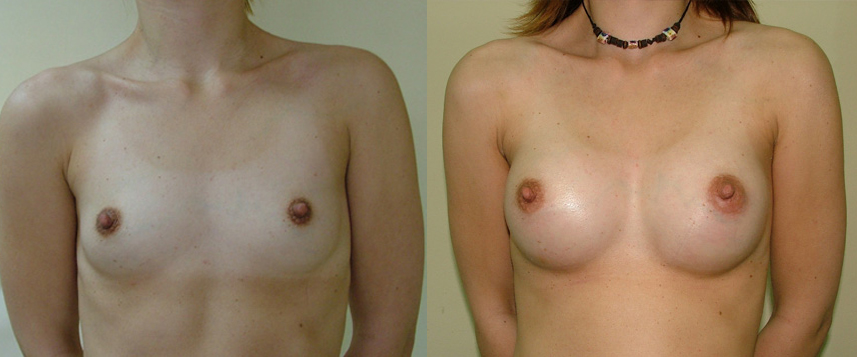 result_breast_enlargement1