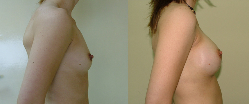 result_breast_enlargement2