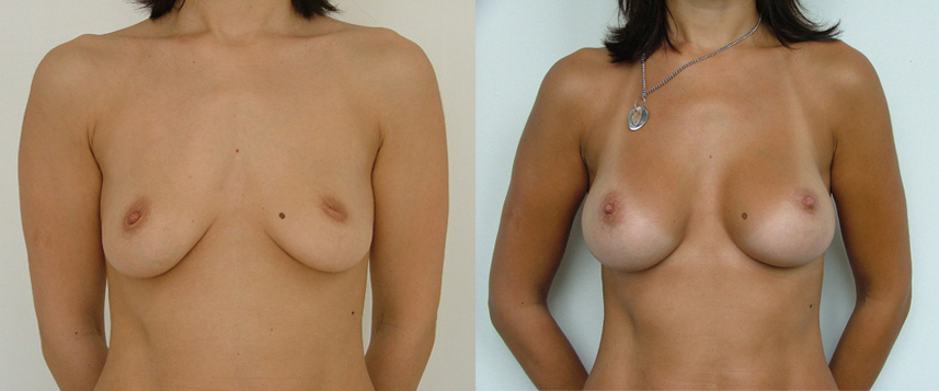 result_breast_enlargement3