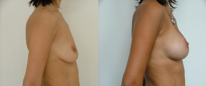 result_breast_enlargement4