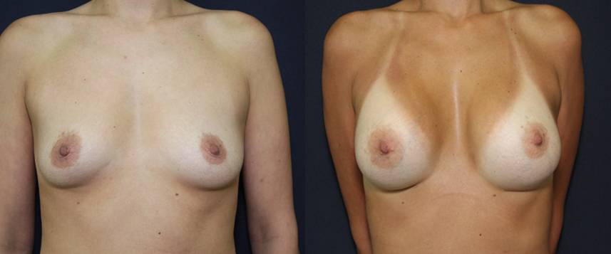 result_breast_enlargement5