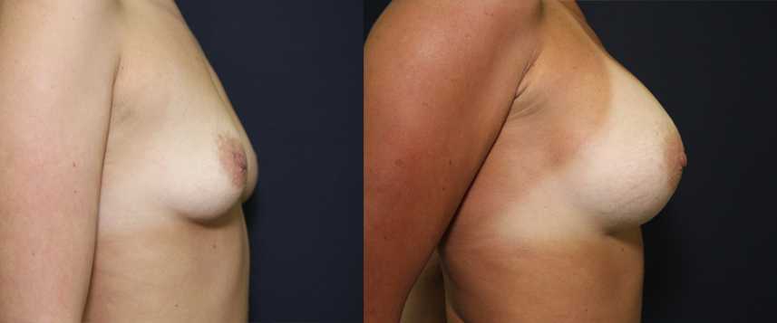 result_breast_enlargement6