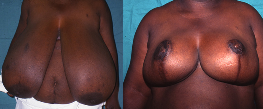 result_breast_reduction1