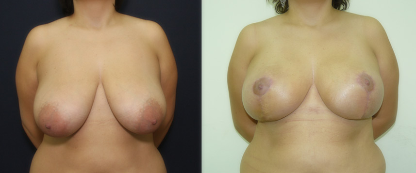 result_breast_reduction2
