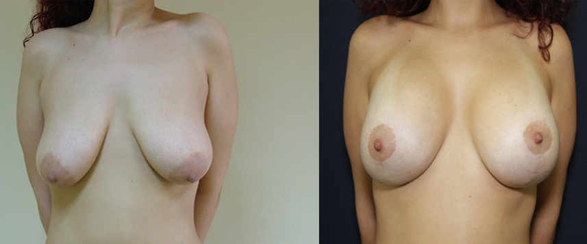 result_breastlifting1
