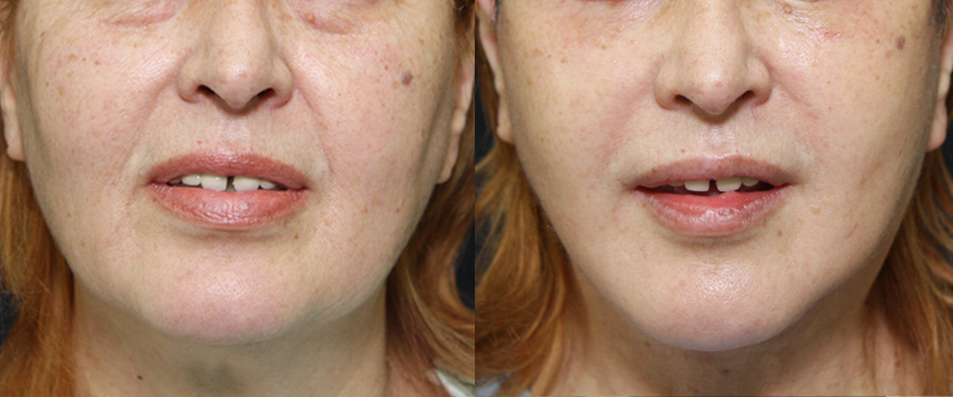 result_facelift1