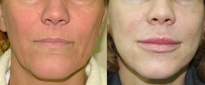 result facelift