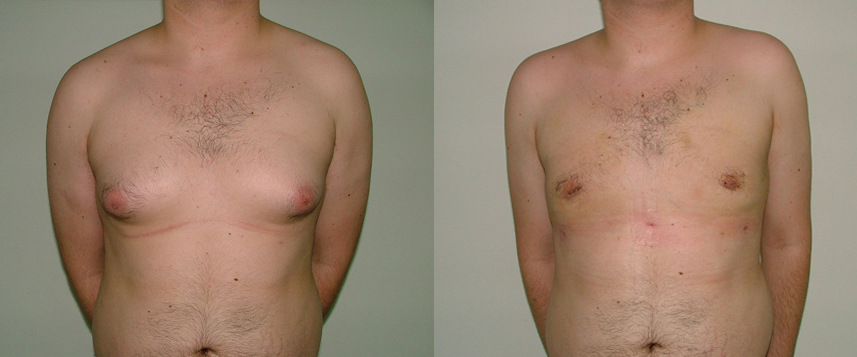 result_gynecomasty1