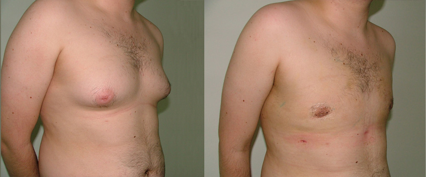 result_gynecomasty2