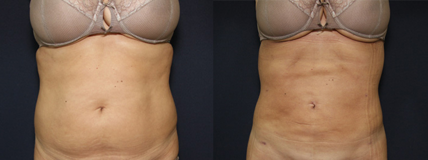 result_liposuction2