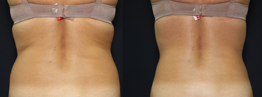 result_liposuction3