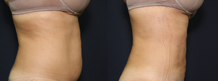 result_liposuction4