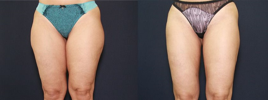 result_liposuction5