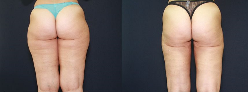 result_liposuction6