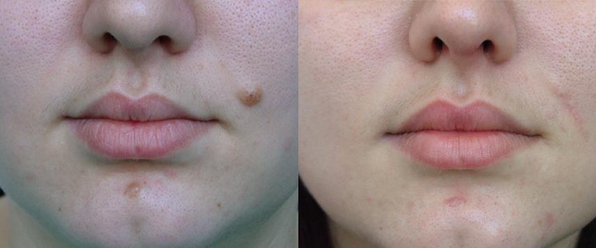 result moles1
