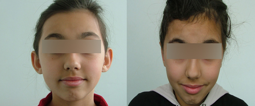 result_otoplasty3