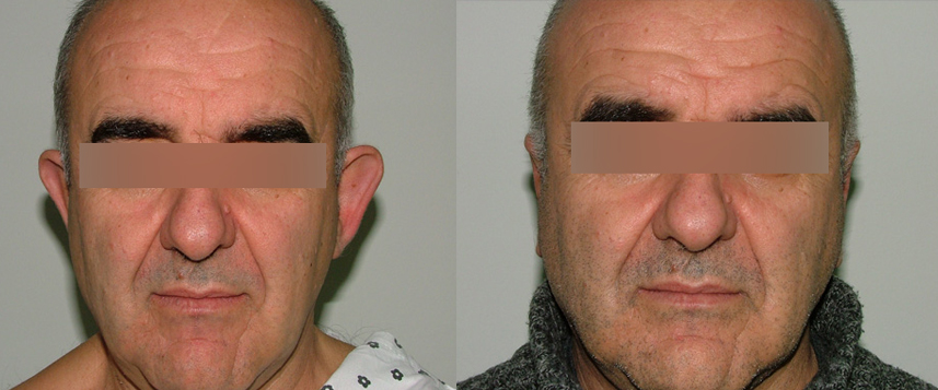 result_otoplasty5