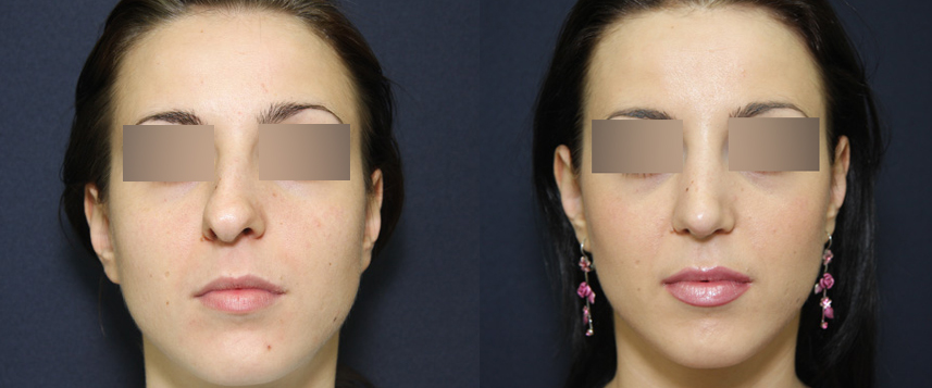 result_rhinoplasty1