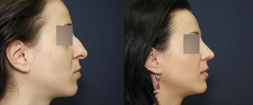 result_rhinoplasty2