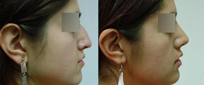result_rhinoplasty3
