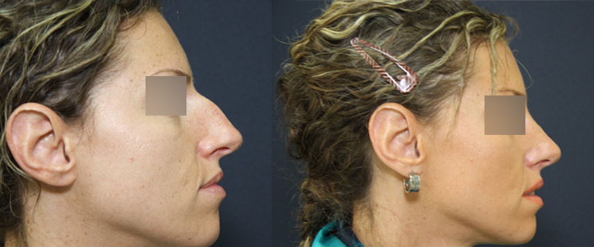result_rhinoplasty4